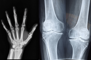 Hand and knee e-rays - calcium supplements